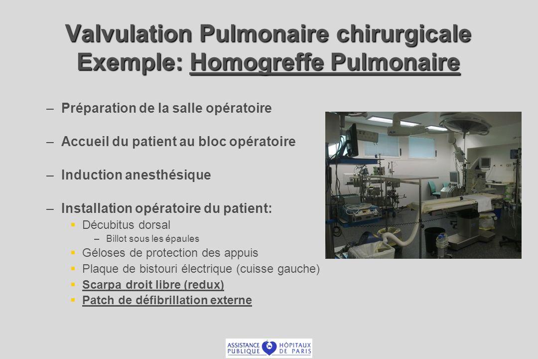– –Préparation de la salle opératoire – –Accueil du patient au bloc opératoire – –Induction anesthésique – –Installation opératoire du patient: Décubi