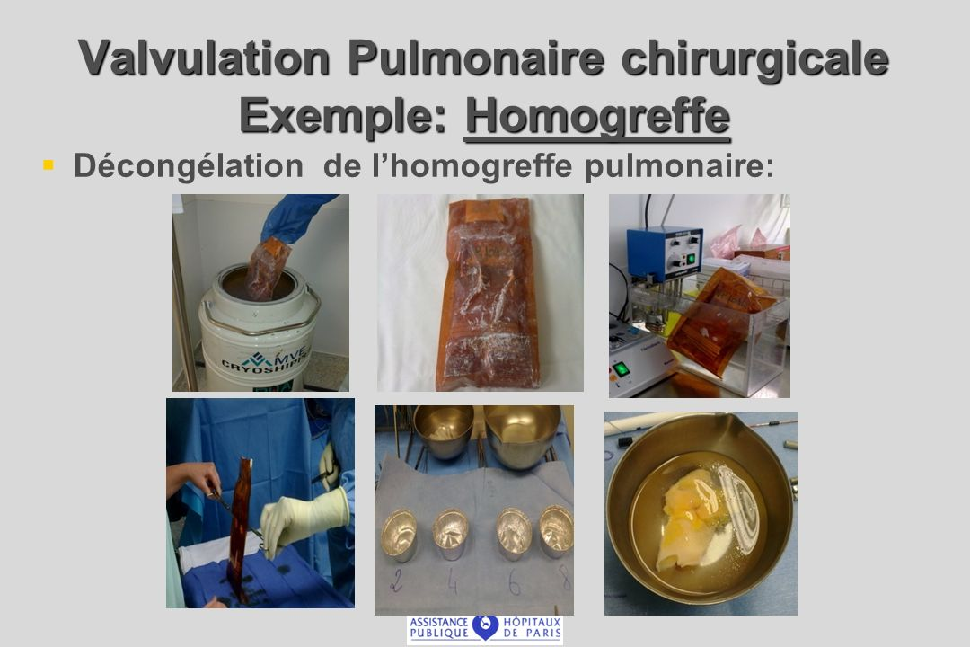 Valvulation Pulmonaire chirurgicale Exemple: Homogreffe Décongélation de lhomogreffe pulmonaire: