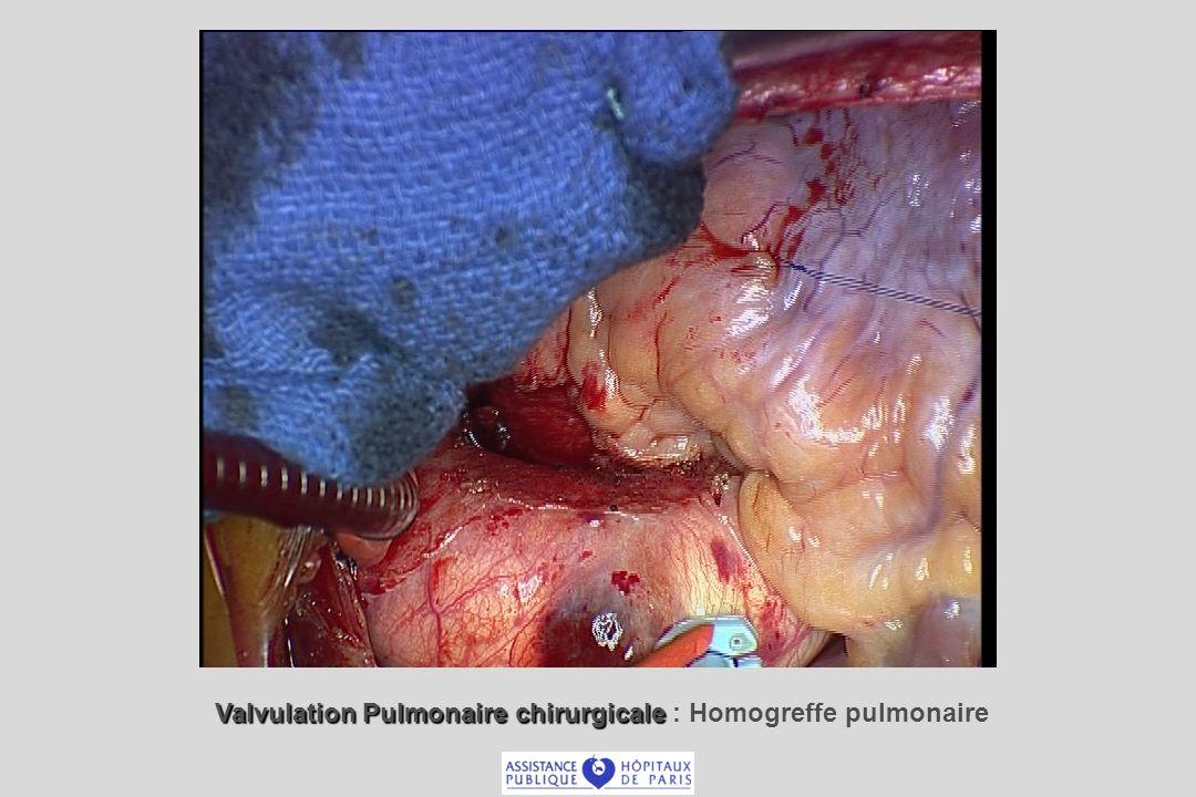 Valvulation Pulmonaire chirurgicale Valvulation Pulmonaire chirurgicale : Homogreffe pulmonaire
