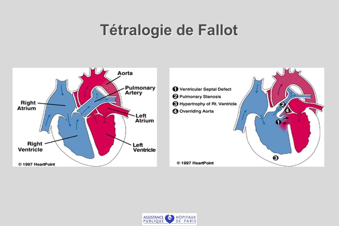 Tétralogie de Fallot: Technique chirurgicale Fermeture CIV - Résection bandelette pariétale Voie trans-atriale Éviter ventriculotomie extensive Conservation annulaire – valvulaire (si possible) Commissurotomie