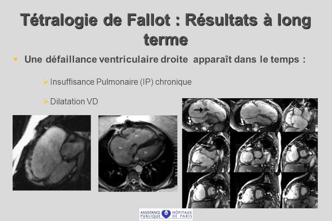 Tétralogie de Fallot : Résultats à long terme Une défaillance ventriculaire droite apparaît dans le temps : Insuffisance Pulmonaire (IP) chronique Dil
