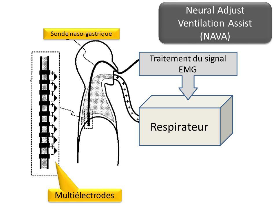 Respirateur Sonde naso-gastrique Multiélectrodes Traitement du signal EMG Neural Adjust Ventilation Assist (NAVA)