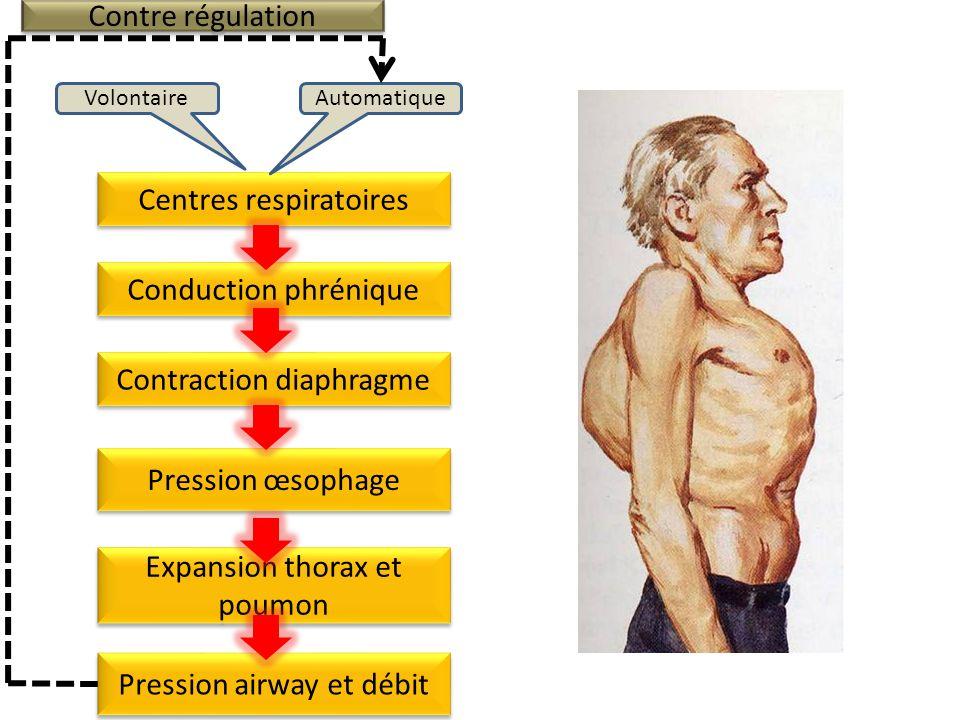 Centres respiratoires AutomatiqueVolontaire Conduction phrénique Contraction diaphragme Expansion thorax et poumon Pression œsophage Mesure f, VT, Vmin Contre régulation Pression airway et débit RESPIRATEUR Pression asservie à f, VT, Vmin RESPIRATEUR Pression asservie à f, VT, Vmin