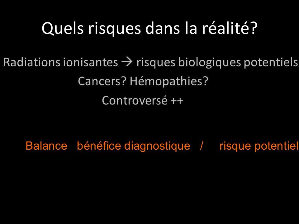 Quels risques dans la réalité.Radiations ionisantes risques biologiques potentiels Cancers.
