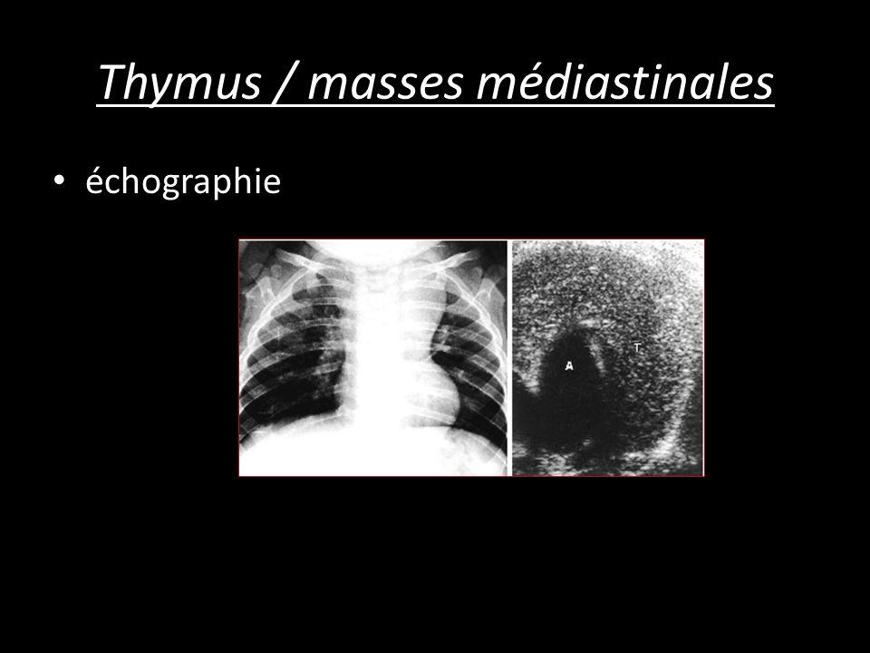 Thymus / masses médiastinales échographie