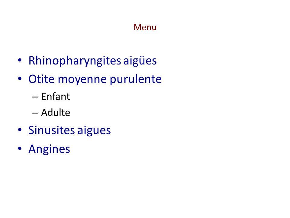 Sinusite aigüe Définition clinique Sinusite aiguë purulente – Infection d une ou plusieurs cavités sinusiennes de la face par des bactéries (généralement S.