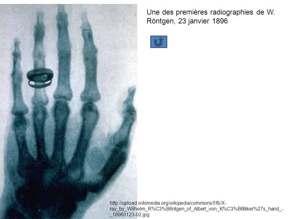 http://upload.wikimedia.org/wikipedia/commons/f/fb/X- ray_by_Wilhelm_R%C3%B6ntgen_of_Albert_von_K%C3%B6lliker%27s_hand_- _18960123-02.jpg Une des premières radiographies de W.