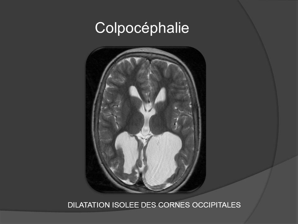 Colpocéphalie DILATATION ISOLEE DES CORNES OCCIPITALES
