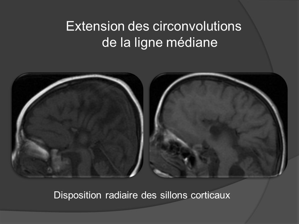 Extension des circonvolutions de la ligne médiane Disposition radiaire des sillons corticaux