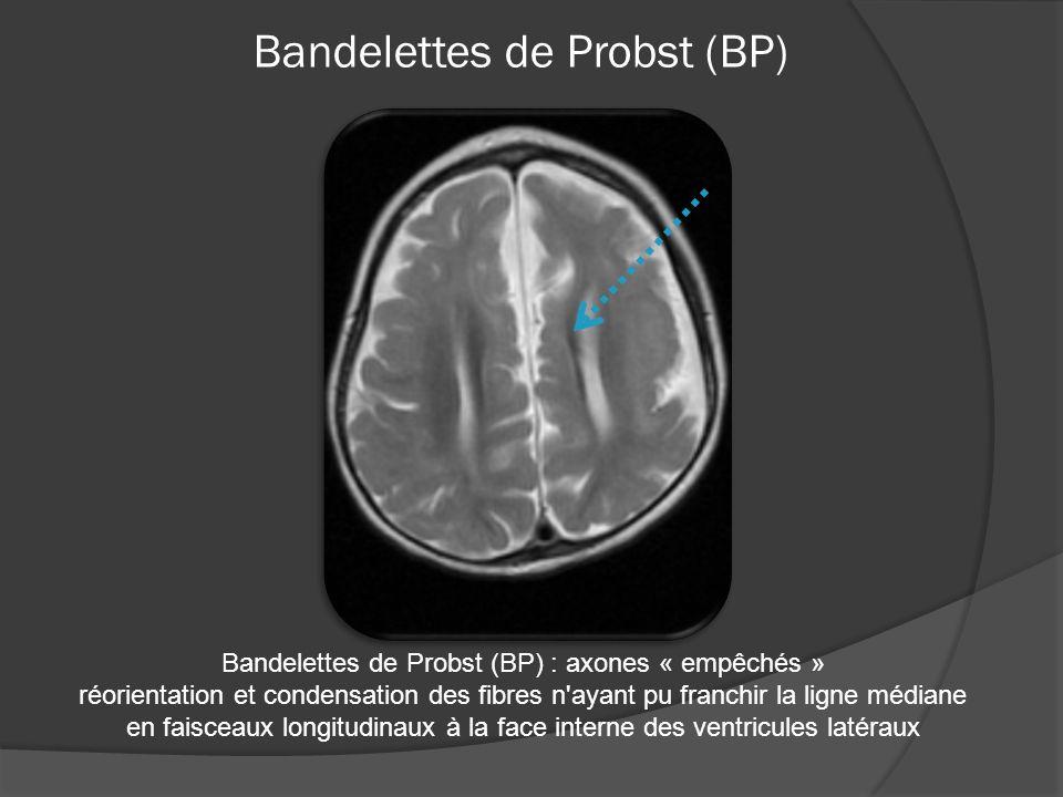 Bandelettes de Probst (BP) Bandelettes de Probst (BP) : axones « empêchés » réorientation et condensation des fibres n ayant pu franchir la ligne médiane en faisceaux longitudinaux à la face interne des ventricules latéraux