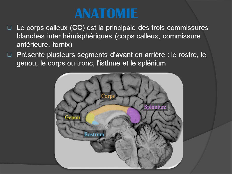 Le corps calleux (CC) est la principale des trois commissures blanches inter hémisphériques (corps calleux, commissure antérieure, fornix) Présente plusieurs segments d avant en arrière : le rostre, le genou, le corps ou tronc, l isthme et le splénium ANATOMIE