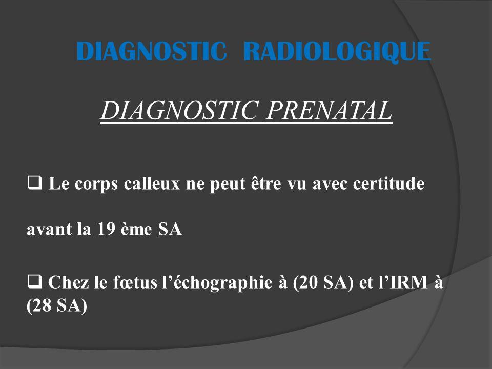 DIAGNOSTIC RADIOLOGIQUE DIAGNOSTIC PRENATAL Le corps calleux ne peut être vu avec certitude avant la 19 ème SA Chez le fœtus léchographie à (20 SA) et lIRM à (28 SA)