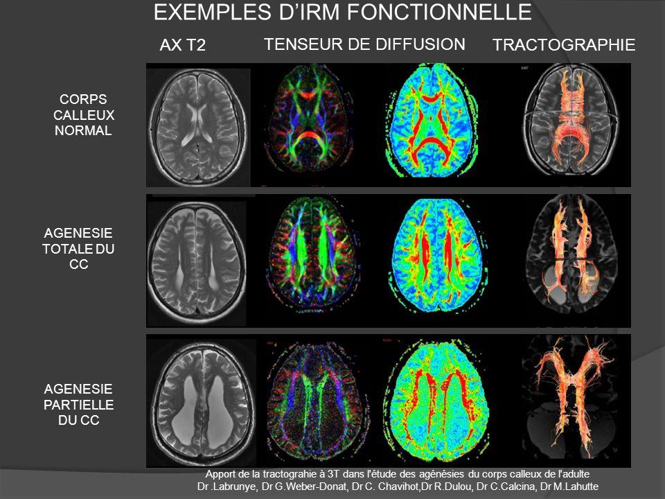 EXEMPLES DIRM FONCTIONNELLE CORPS CALLEUX NORMAL AX T2 TENSEUR DE DIFFUSION TRACTOGRAPHIE AGENESIE TOTALE DU CC AGENESIE PARTIELLE DU CC Apport de la tractograhie à 3T dans l étude des agénésies du corps calleux de l adulte Dr.Labrunye, Dr G.Weber-Donat, Dr C.