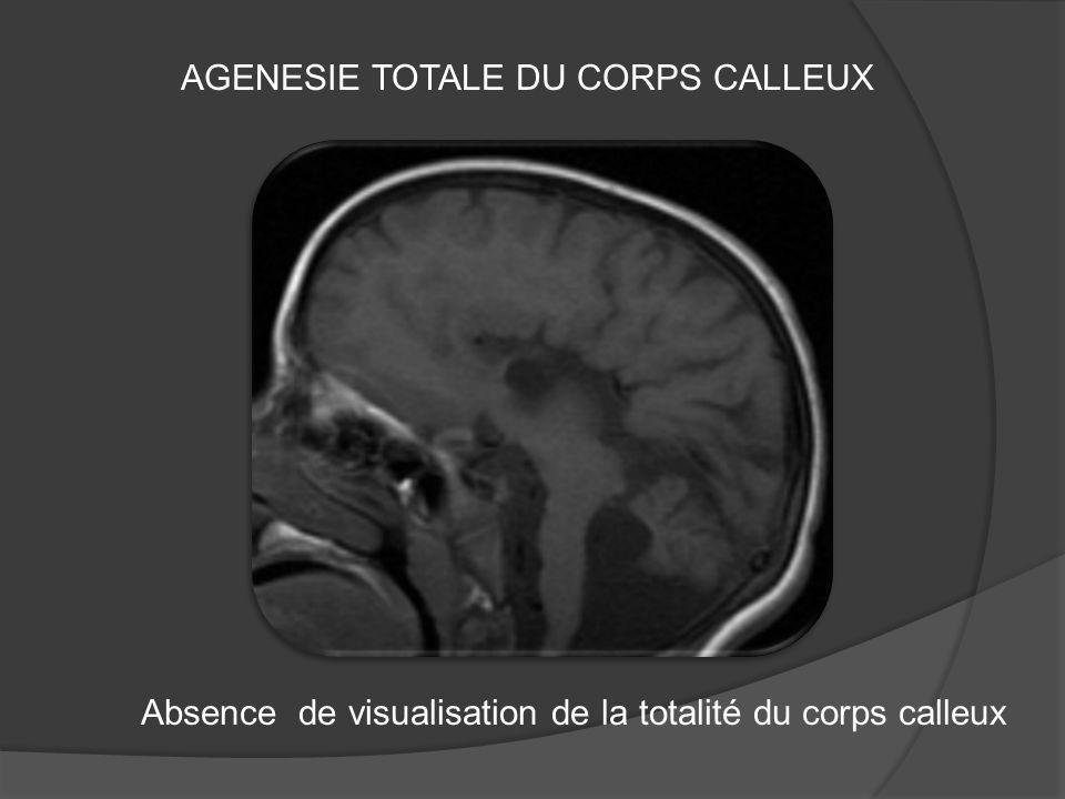 AGENESIE TOTALE DU CORPS CALLEUX Absence de visualisation de la totalité du corps calleux