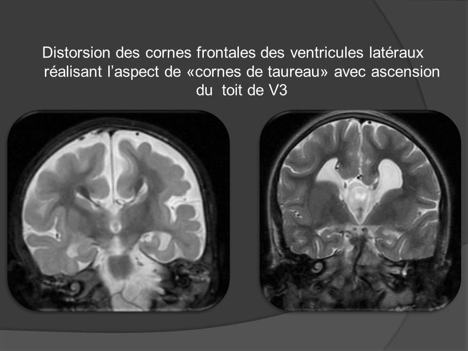 Distorsion des cornes frontales des ventricules latéraux réalisant laspect de «cornes de taureau» avec ascension du toit de V3