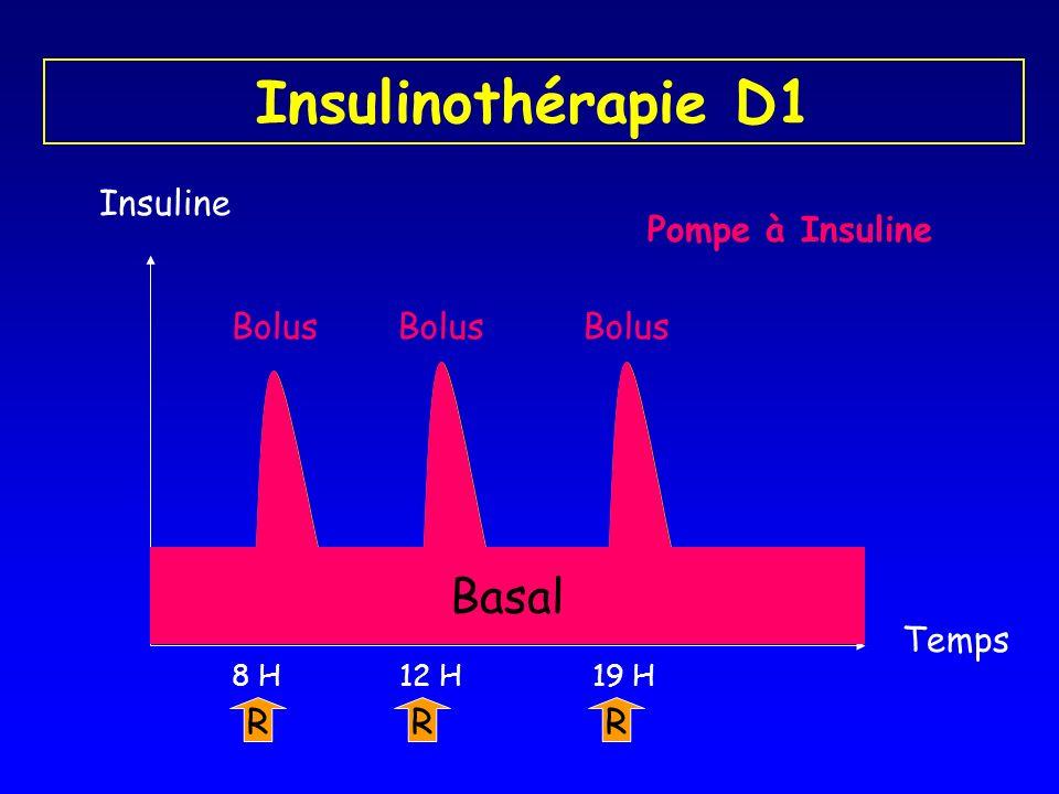 Insulinothérapie D1 Insuline R 8 H R 19 H R 12 H Temps Pompe à Insuline Basal Bolus