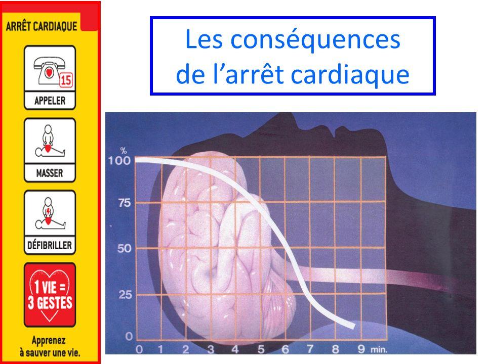 Les conséquences de larrêt cardiaque