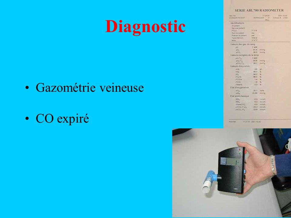 Diagnostic Gazométrie veineuse CO expiré
