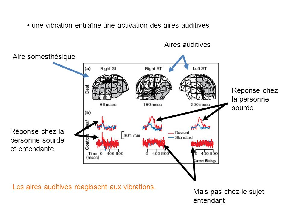 - La zone T1 est préservée chez le sourd -Cette zone répond aux stimulations visuelles (linguistiques ou non) : réorganisation fonctionnelle - Le cort