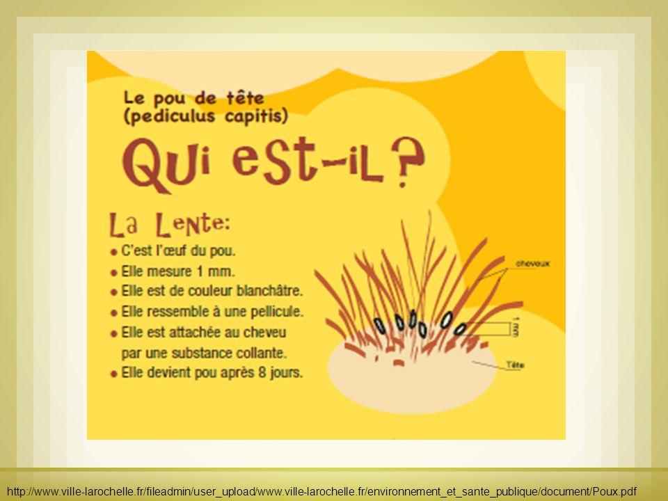 http://www.ville-larochelle.fr/fileadmin/user_upload/www.ville-larochelle.fr/environnement_et_sante_publique/document/Poux.pdf
