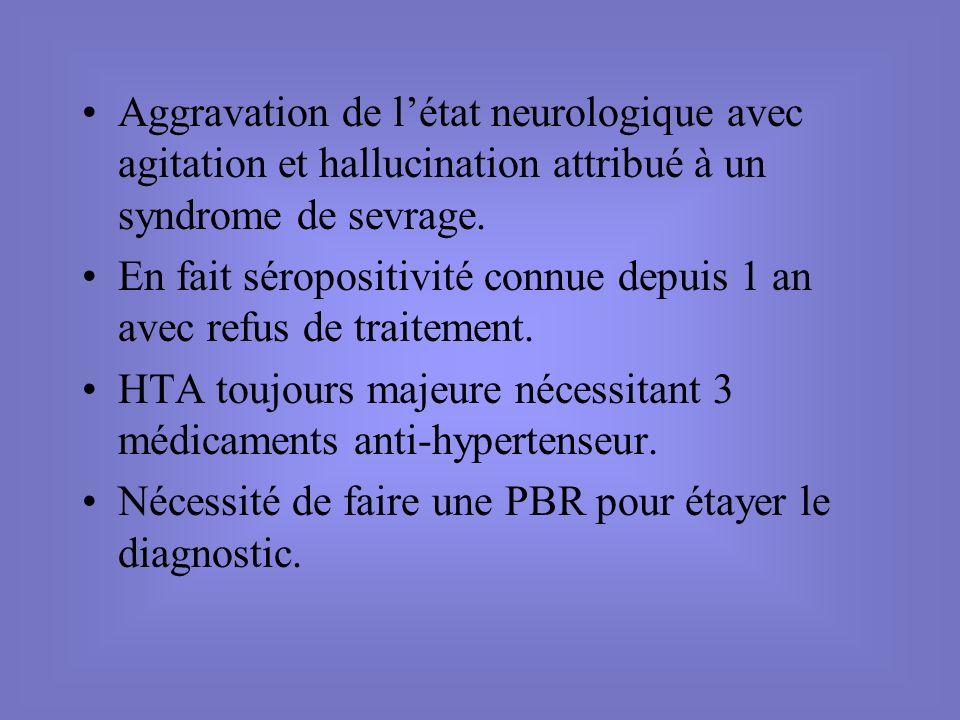 Aggravation de létat neurologique avec agitation et hallucination attribué à un syndrome de sevrage. En fait séropositivité connue depuis 1 an avec re