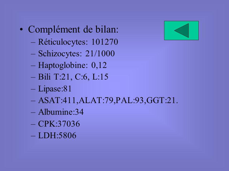 Complément de bilan: –Réticulocytes: 101270 –Schizocytes: 21/1000 –Haptoglobine: 0,12 –Bili T:21, C:6, L:15 –Lipase:81 –ASAT:411,ALAT:79,PAL:93,GGT:21