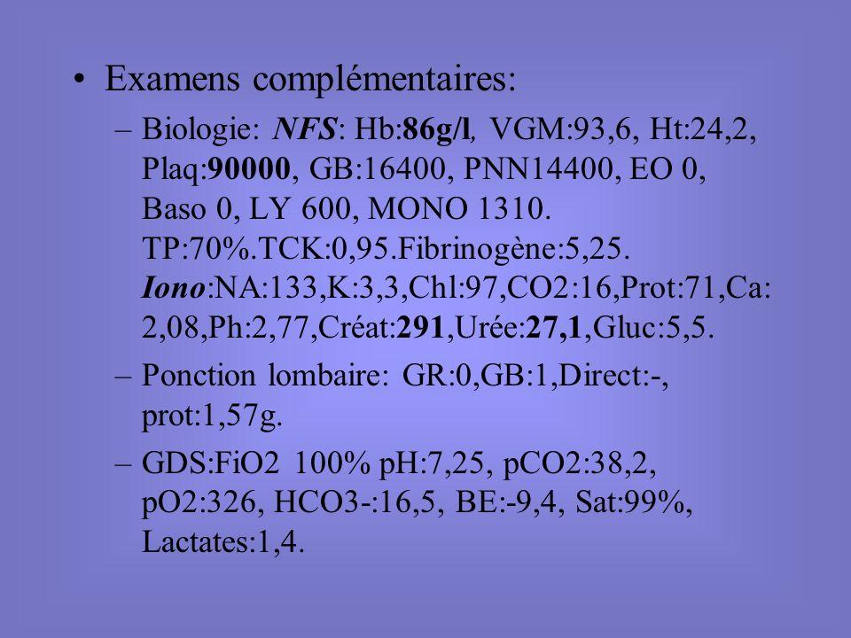 Examens complémentaires: –Biologie: NFS: Hb:86g/l, VGM:93,6, Ht:24,2, Plaq:90000, GB:16400, PNN14400, EO 0, Baso 0, LY 600, MONO 1310. TP:70%.TCK:0,95
