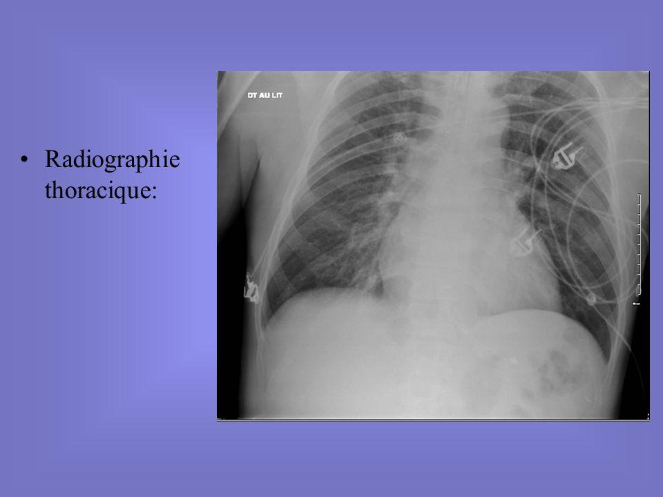 Echographie cardiaque: –FeVG conservée = 60% –HVG concentrique: Sivd 16mm, Ppd 12mm.