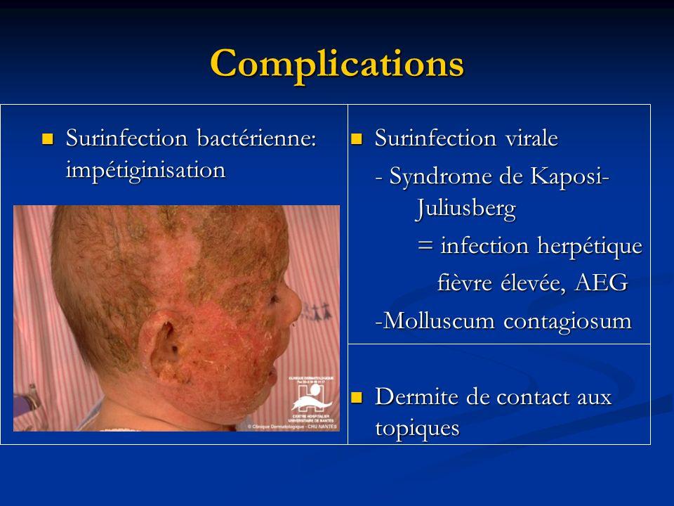 Complications Surinfection bactérienne: impétiginisation Surinfection bactérienne: impétiginisation Surinfection virale - Syndrome de Kaposi- Juliusbe