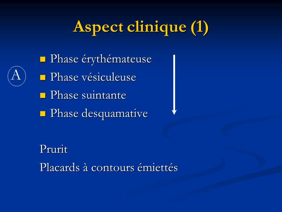 Aspect clinique (1) Phase érythémateuse Phase érythémateuse Phase vésiculeuse Phase vésiculeuse Phase suintante Phase suintante Phase desquamative Pha