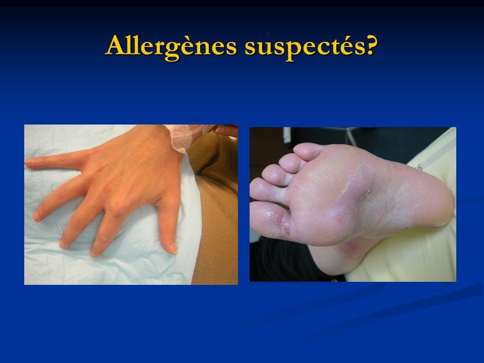 Allergènes suspectés?