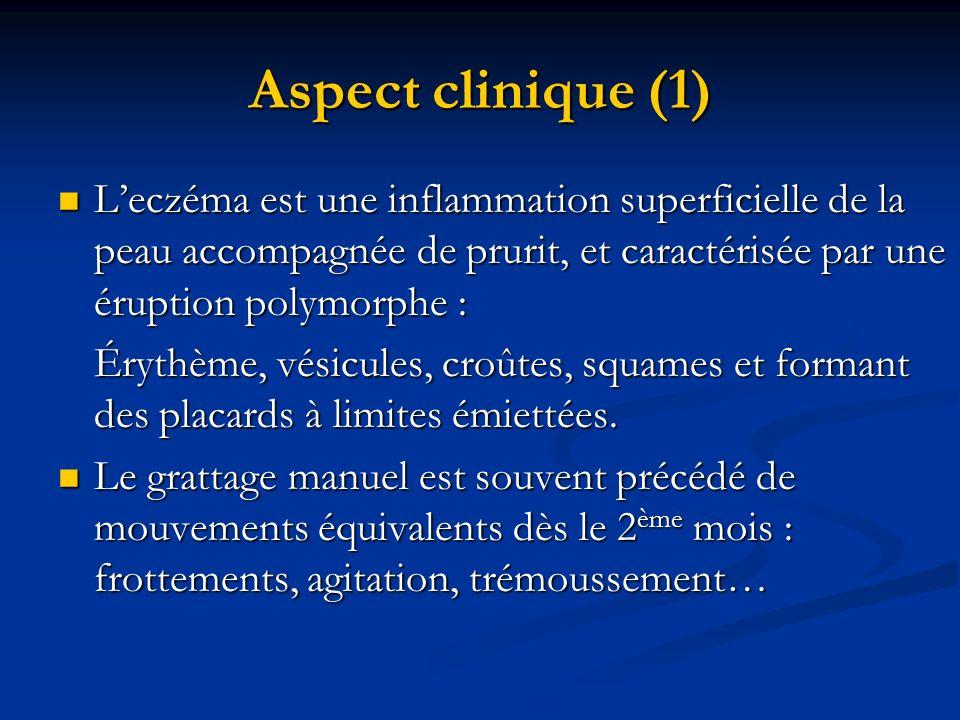 Aspect clinique (1) Leczéma est une inflammation superficielle de la peau accompagnée de prurit, et caractérisée par une éruption polymorphe : Leczéma