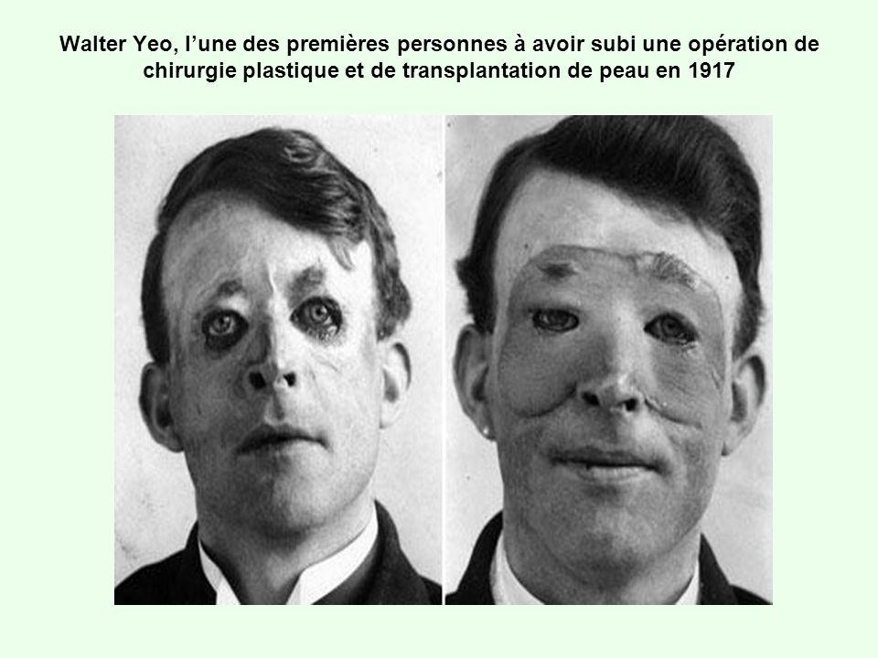 Walter Yeo, lune des premières personnes à avoir subi une opération de chirurgie plastique et de transplantation de peau en 1917
