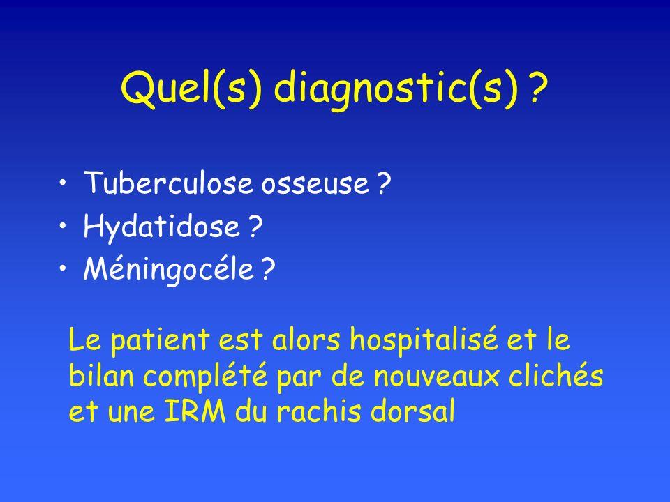 Quel(s) diagnostic(s) ? Tuberculose osseuse ? Hydatidose ? Méningocéle ? Le patient est alors hospitalisé et le bilan complété par de nouveaux clichés