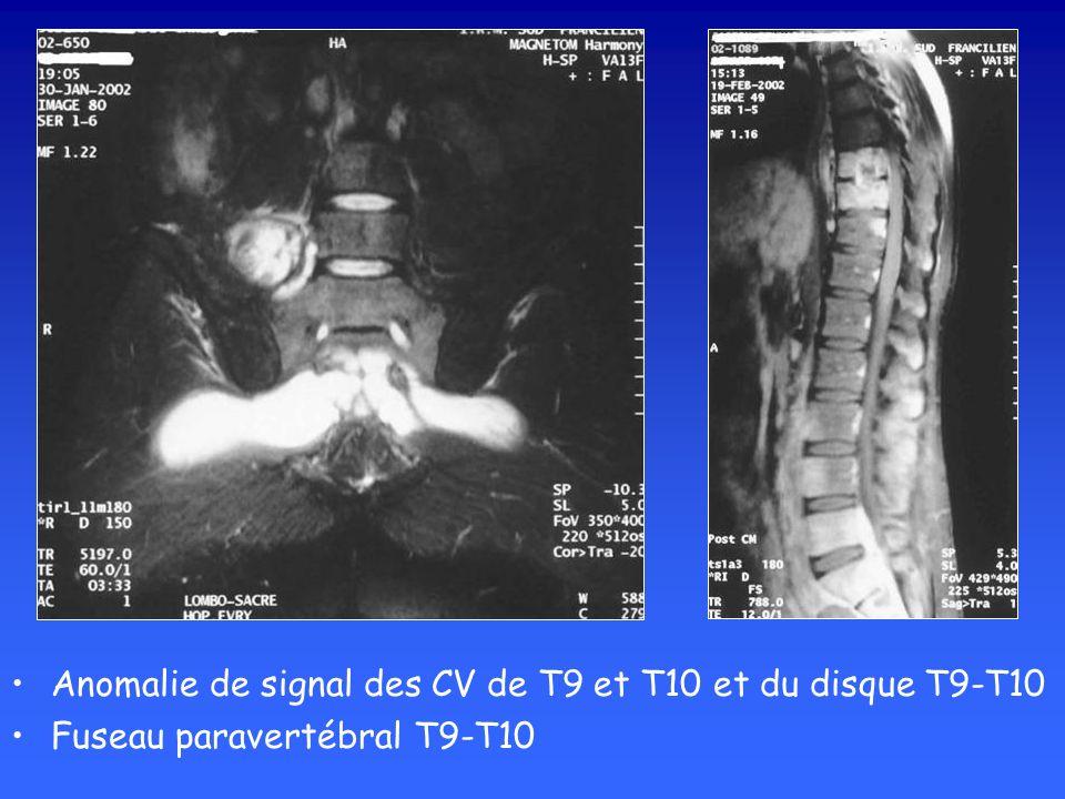 Anomalie de signal des CV de T9 et T10 et du disque T9-T10 Fuseau paravertébral T9-T10