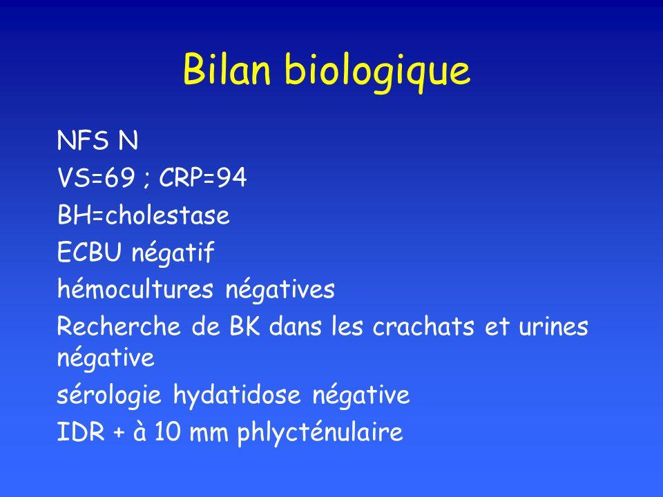 Bilan biologique NFS N VS=69 ; CRP=94 BH=cholestase ECBU négatif hémocultures négatives Recherche de BK dans les crachats et urines négative sérologie