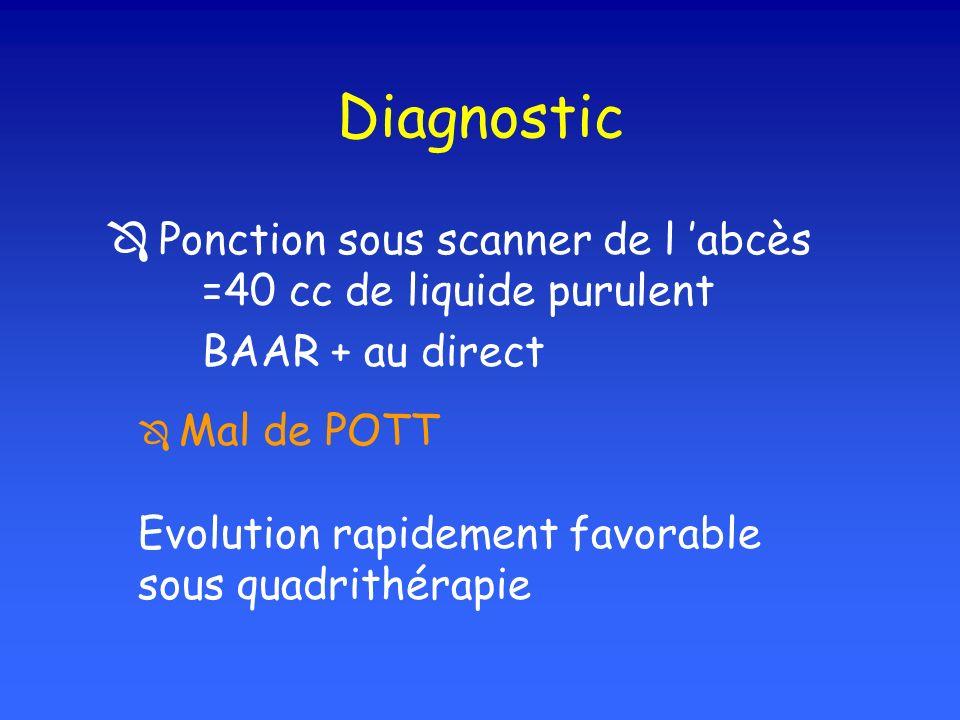 Diagnostic Ponction sous scanner de l abcès =40 cc de liquide purulent BAAR + au direct Mal de POTT Evolution rapidement favorable sous quadrithérapie