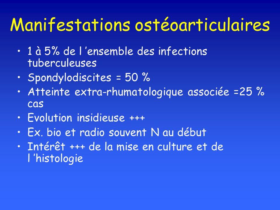 Manifestations ostéoarticulaires 1 à 5% de l ensemble des infections tuberculeuses Spondylodiscites = 50 % Atteinte extra-rhumatologique associée =25