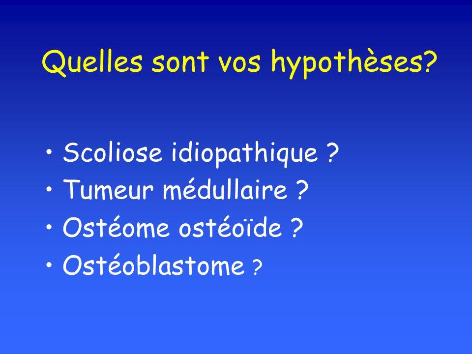 Quelles sont vos hypothèses? Scoliose idiopathique ? Tumeur médullaire ? Ostéome ostéoïde ? Ostéoblastome ?