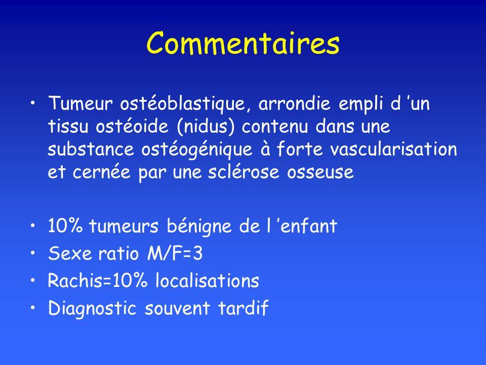 Commentaires Tumeur ostéoblastique, arrondie empli d un tissu ostéoide (nidus) contenu dans une substance ostéogénique à forte vascularisation et cernée par une sclérose osseuse 10% tumeurs bénigne de l enfant Sexe ratio M/F=3 Rachis=10% localisations Diagnostic souvent tardif
