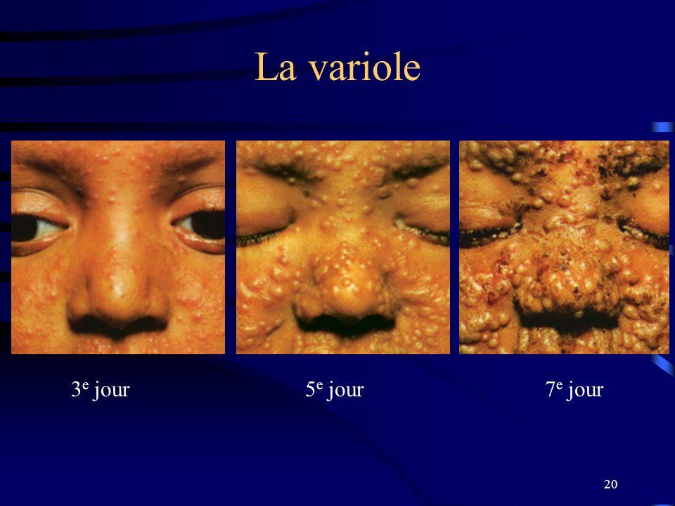 20 La variole 3 e jour 5 e jour 7 e jour