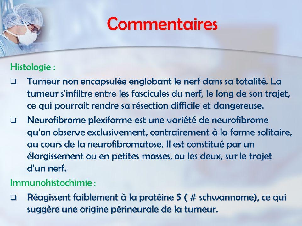 Commentaires Histologie : Tumeur non encapsulée englobant le nerf dans sa totalité. La tumeur s'infiltre entre les fascicules du nerf, le long de son