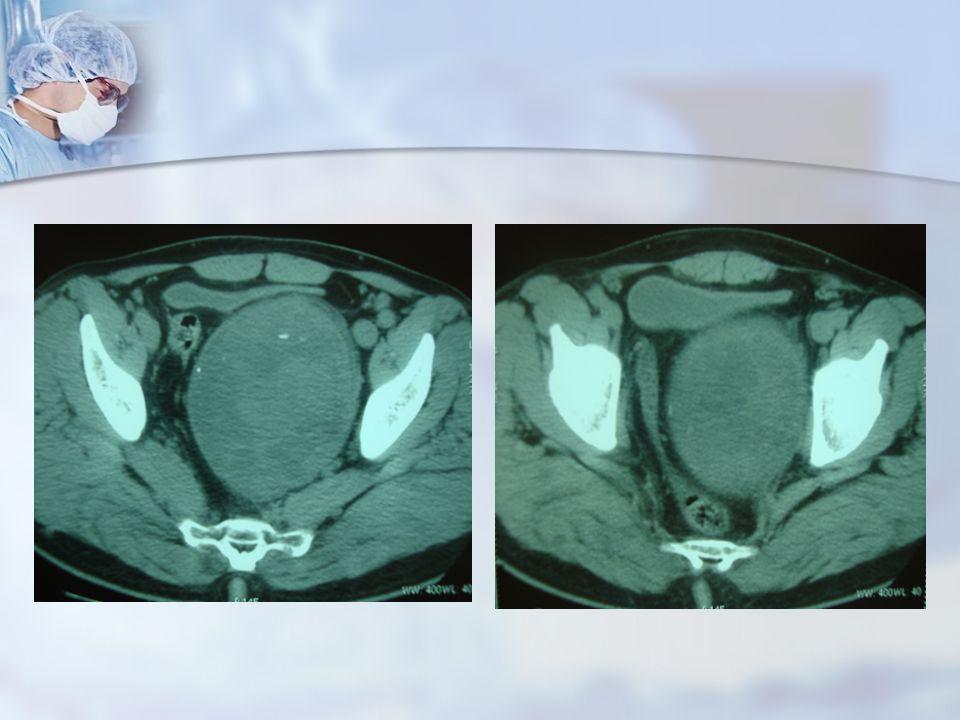 Observation Traitement : Patient a été opéré par une laparotomie médiane.