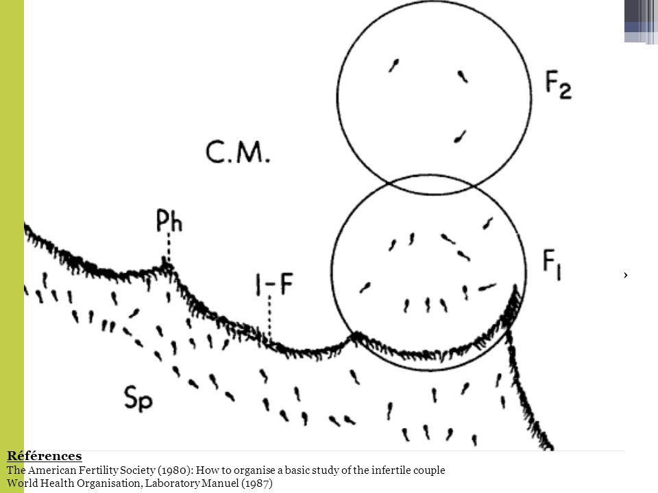 Bilan de base de linfertilité 1980 2010 Insufflation tubaire Test postcoïtal (TPC) Biopsie de lendomètre Laparoscopie + Hystéroscopie + dilatation et curetage FSH 3e jour Progestérone plasmatique «Distracteurs» Spermogramme TSH et prolactine Cultures cervicales (Chlamydia Trachomatis, gonocoque) Hystérosalpingographie Références The American Fertility Society (1980): How to organise a basic study of the infertile couple World Health Organisation, Laboratory Manuel (1987)