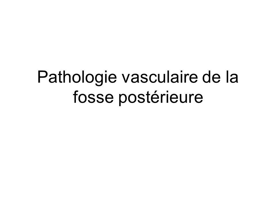 Pathologie vasculaire de la fosse postérieure