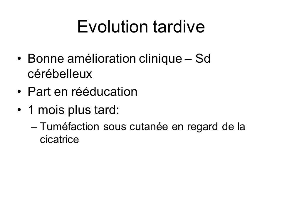 Evolution tardive Bonne amélioration clinique – Sd cérébelleux Part en rééducation 1 mois plus tard: –Tuméfaction sous cutanée en regard de la cicatrice