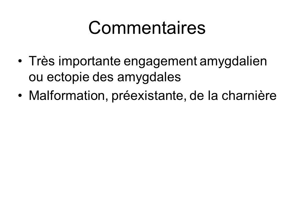 Commentaires Très importante engagement amygdalien ou ectopie des amygdales Malformation, préexistante, de la charnière