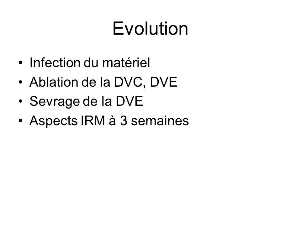 Evolution Infection du matériel Ablation de la DVC, DVE Sevrage de la DVE Aspects IRM à 3 semaines