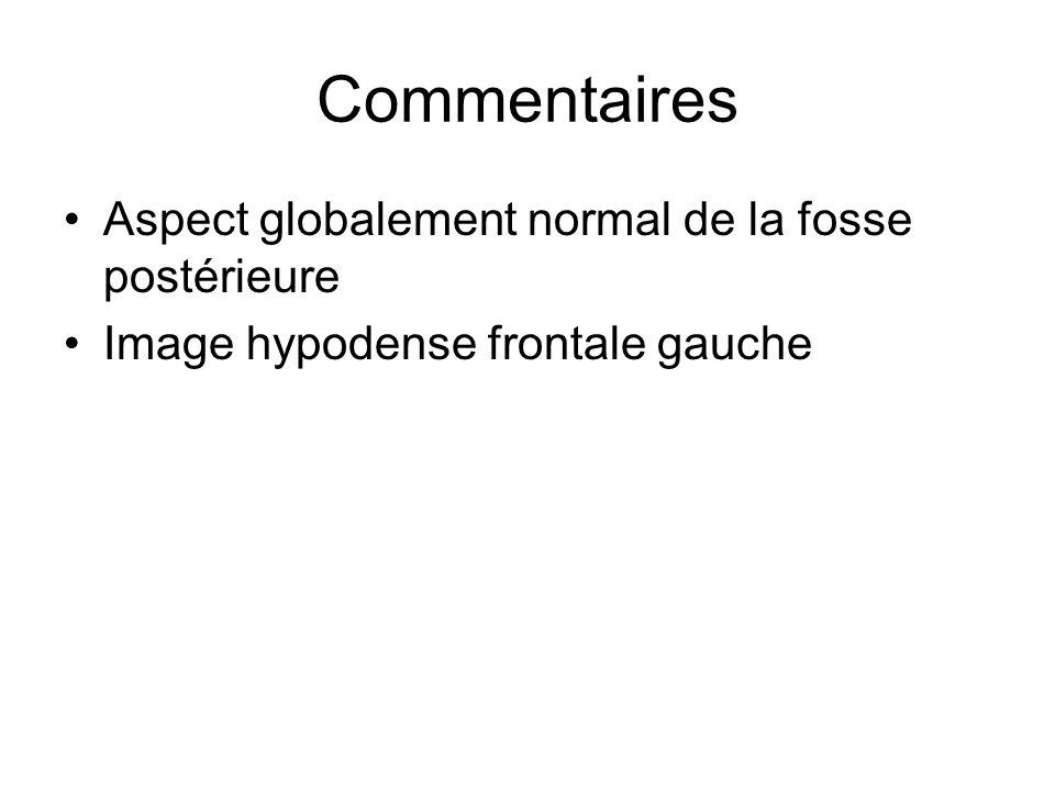 Commentaires Aspect globalement normal de la fosse postérieure Image hypodense frontale gauche