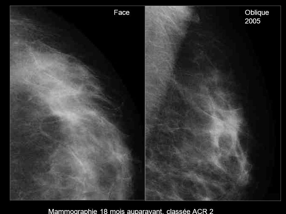 FaceOblique 2005 Mammographie 18 mois auparavant, classée ACR 2